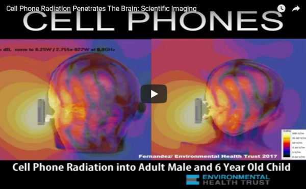 CELL PHONES' radiation and the brain_video